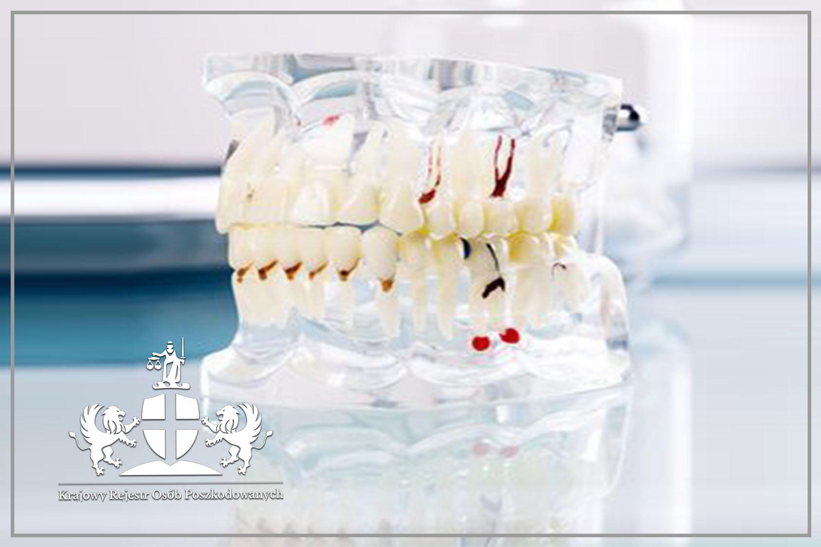 Odpowiedzialność właściciela kliniki dentystycznej za błąd medyczny