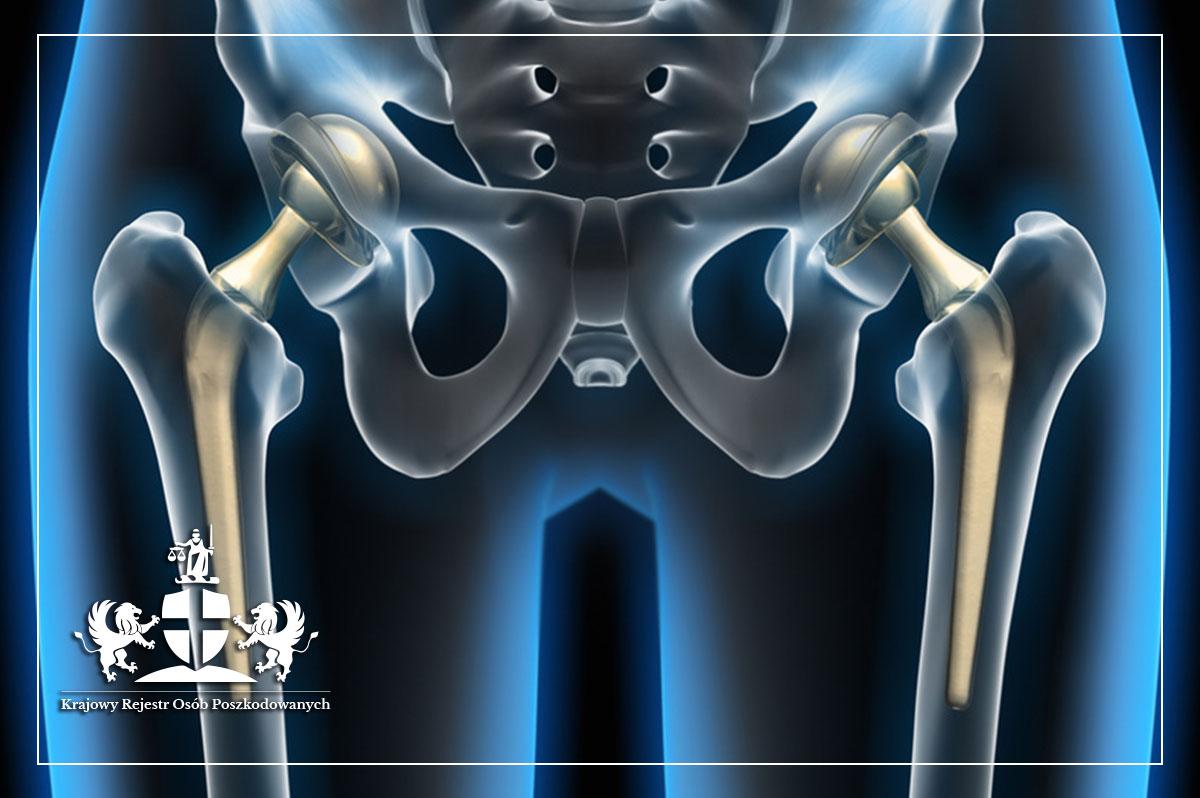 Endoproteza – pacjencie, jak dużo wiesz o metalozie i wadliwych implantach?