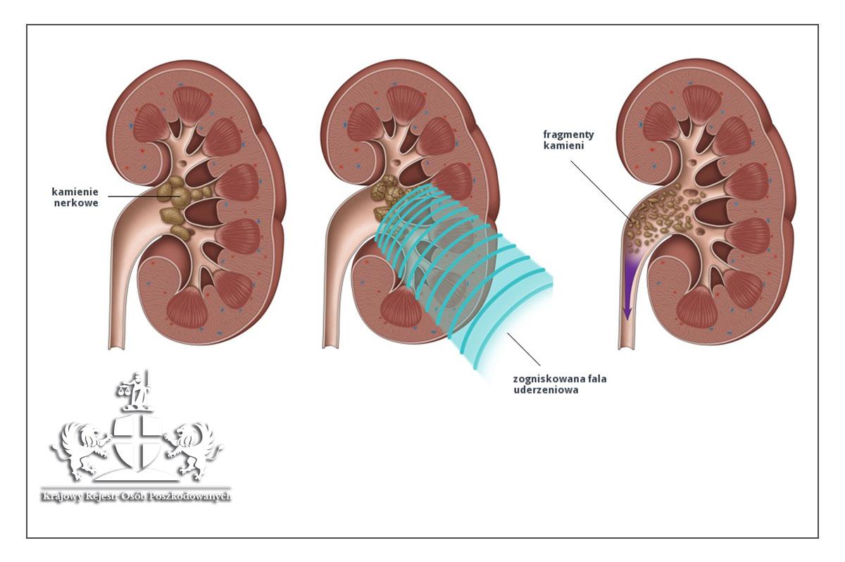 Kamica moczowa, a błąd medyczny podczas leczenia