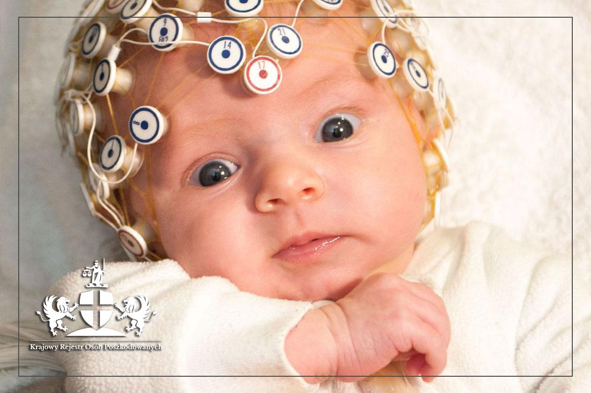 Badanie EEG dziecka