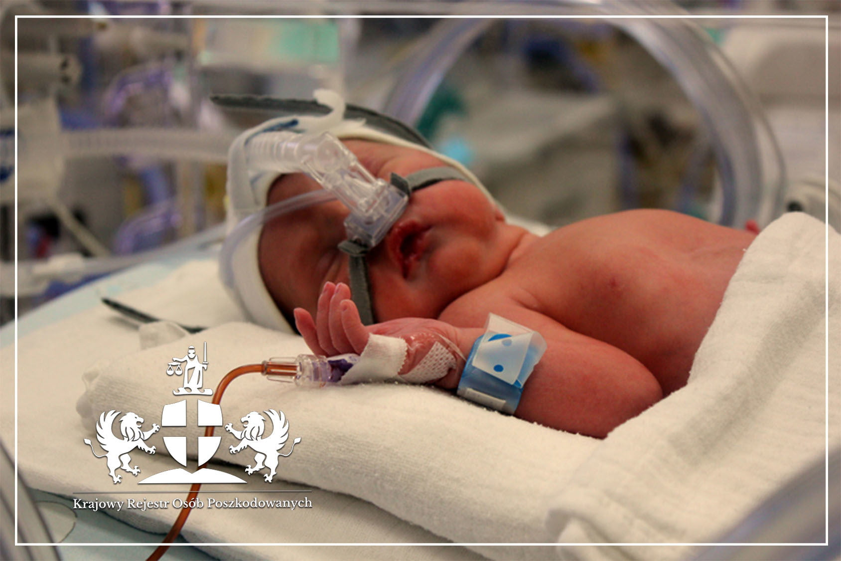 Nadciśnienie płucne u noworodka