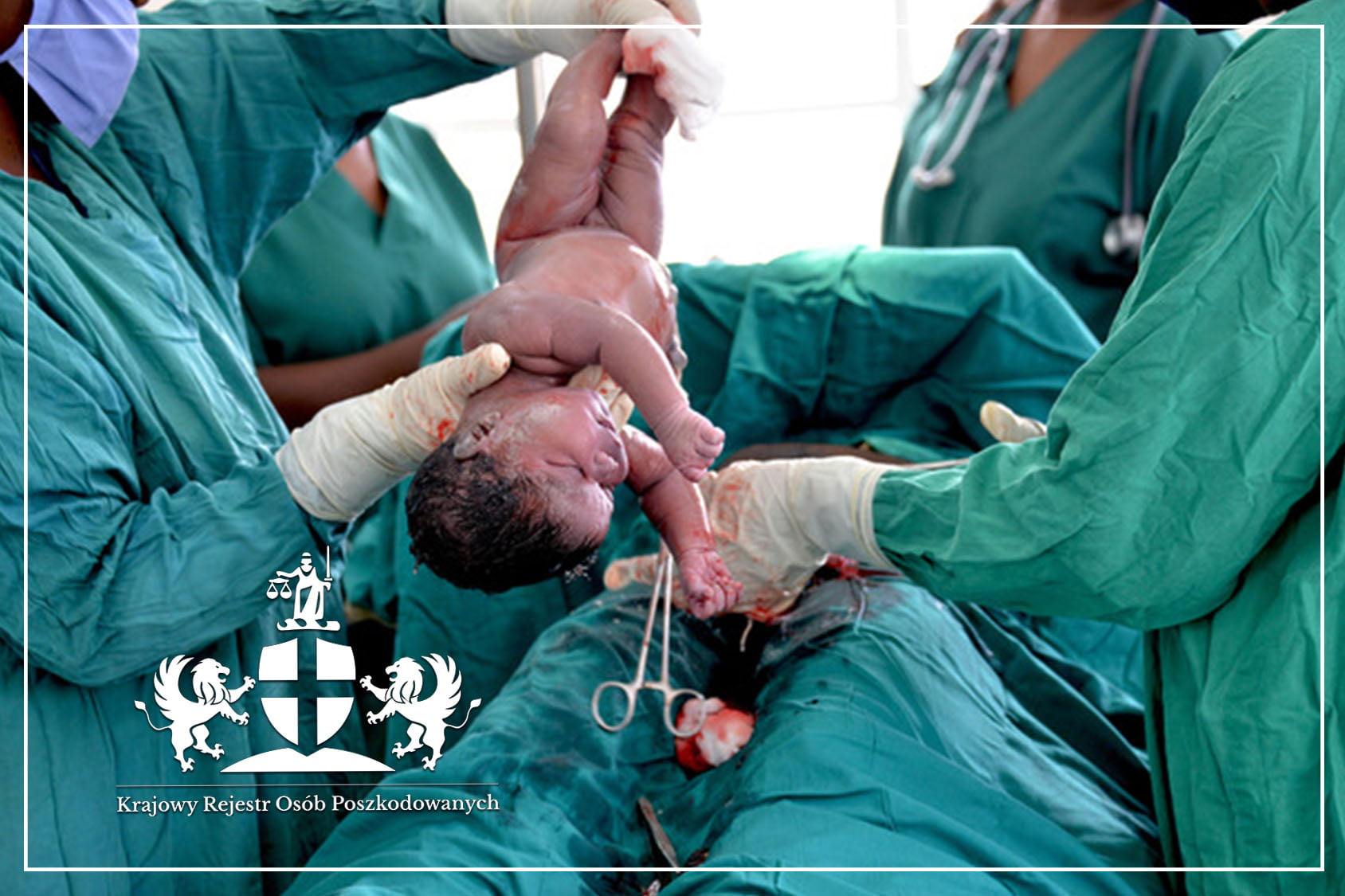 Operacja cesarskie ciecie